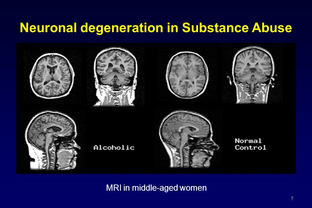 Neuronal degeneration in Substance Abuse