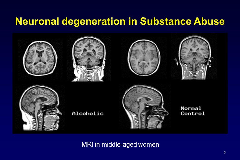 Neuronal degeneration in Substance Abuse