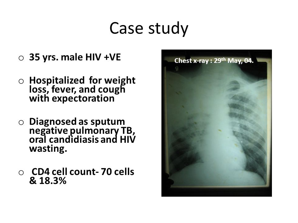 Case study 35 yrs. male HIV +VE