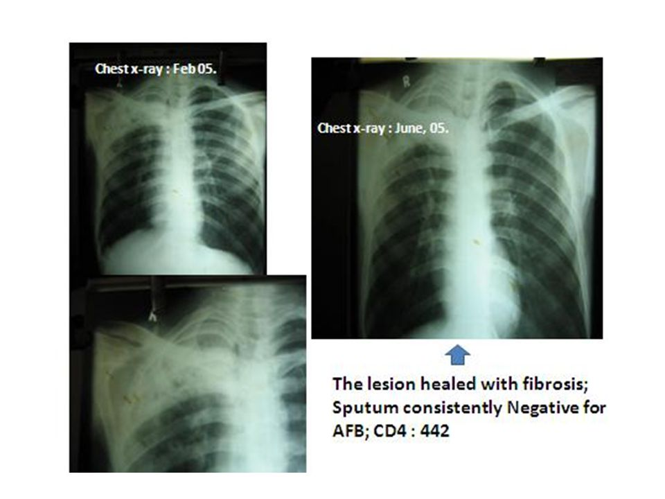 Chest x-ray : Feb 05. Chest x-ray : June, 05.