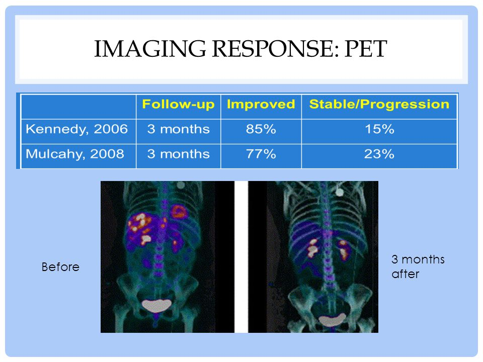 Imaging Response: PET 3 months after Before