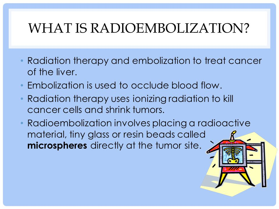 What is Radioembolization