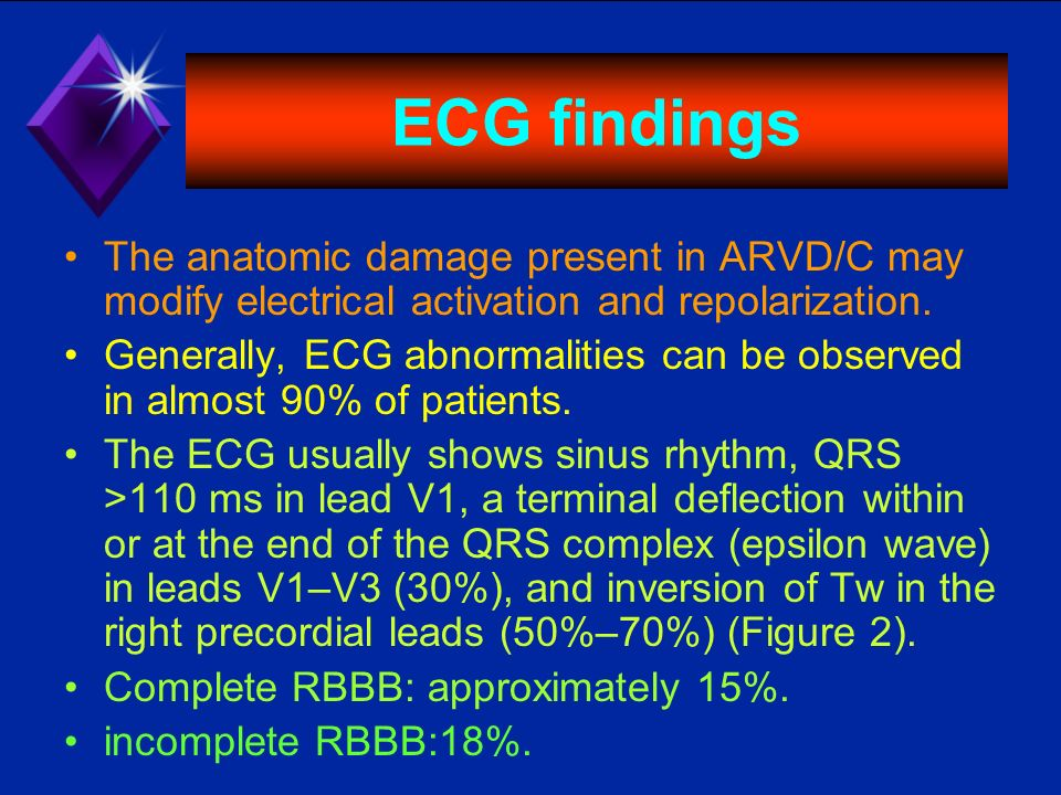 ECG findings The anatomic damage present in ARVD/C may modify electrical activation and repolarization.