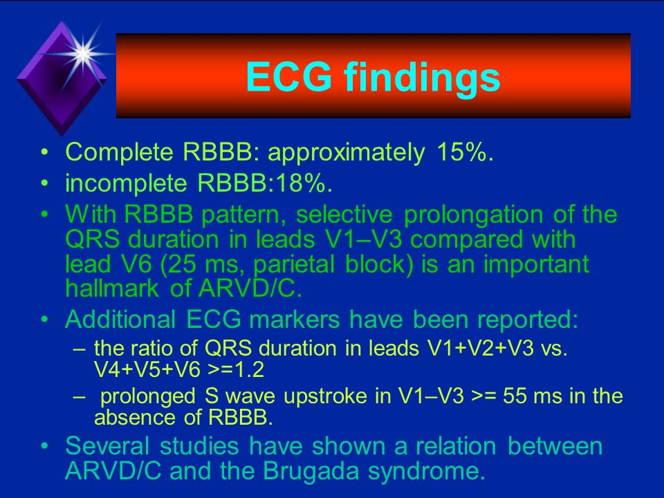 ECG findings Complete RBBB: approximately 15%. incomplete RBBB:18%.