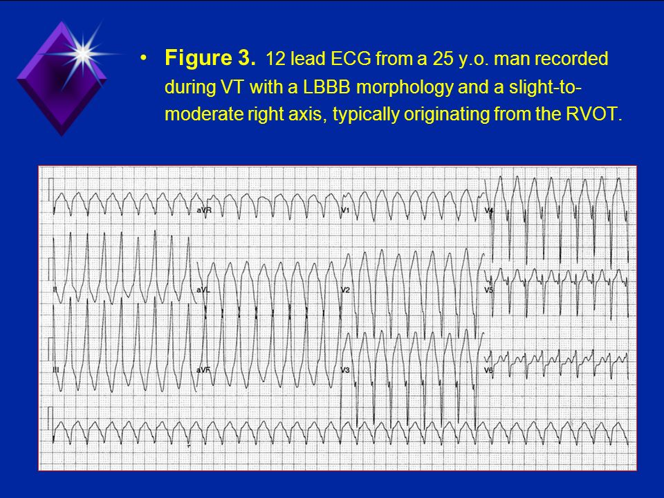 Figure 3. 12 lead ECG from a 25 y. o