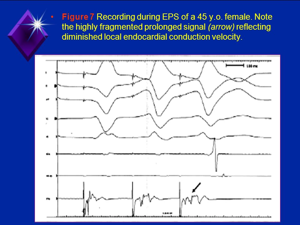 Figure 7 Recording during EPS of a 45 y. o. female