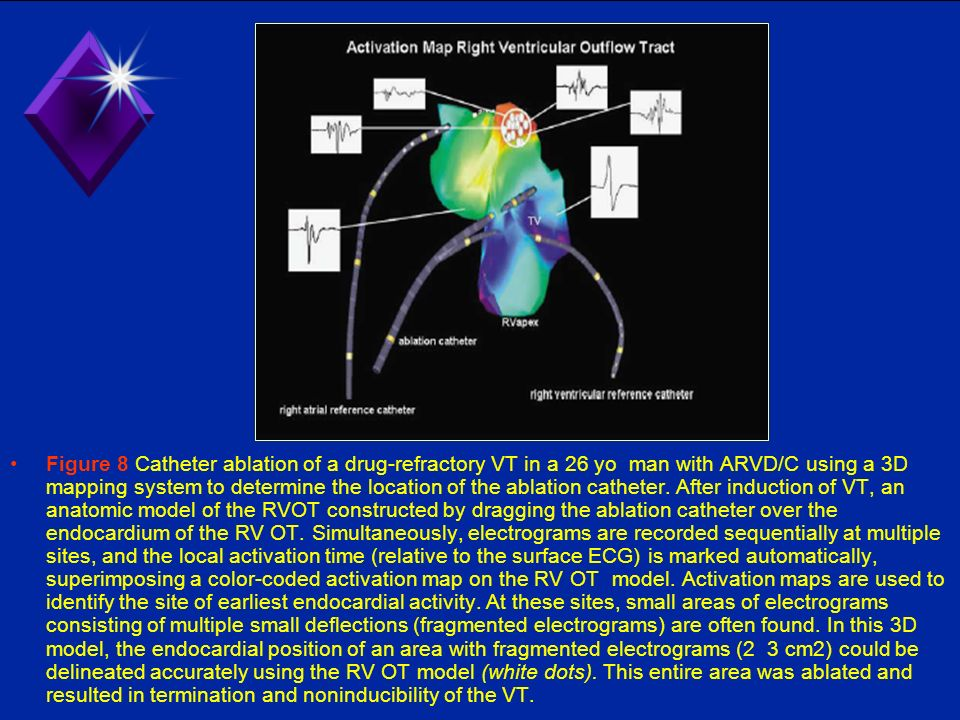 Figure 8 Catheter ablation of a drug-refractory VT in a 26 yo man with ARVD/C using a 3D mapping system to determine the location of the ablation catheter.