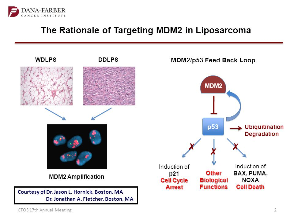 ✗ The Rationale of Targeting MDM2 in Liposarcoma