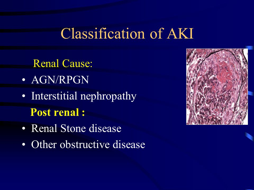 Classification of AKI Renal Cause: AGN/RPGN Interstitial nephropathy