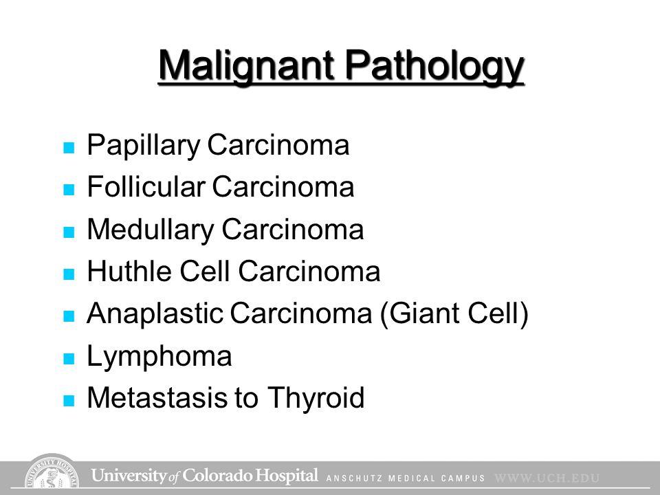 Malignant Pathology Papillary Carcinoma Follicular Carcinoma