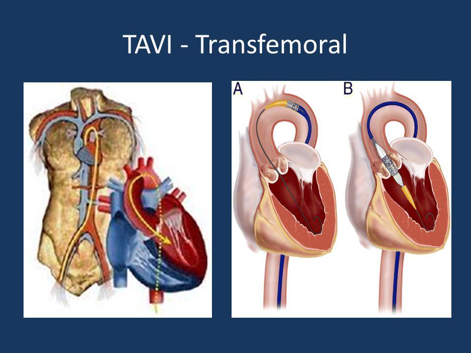 TAVI - Transfemoral