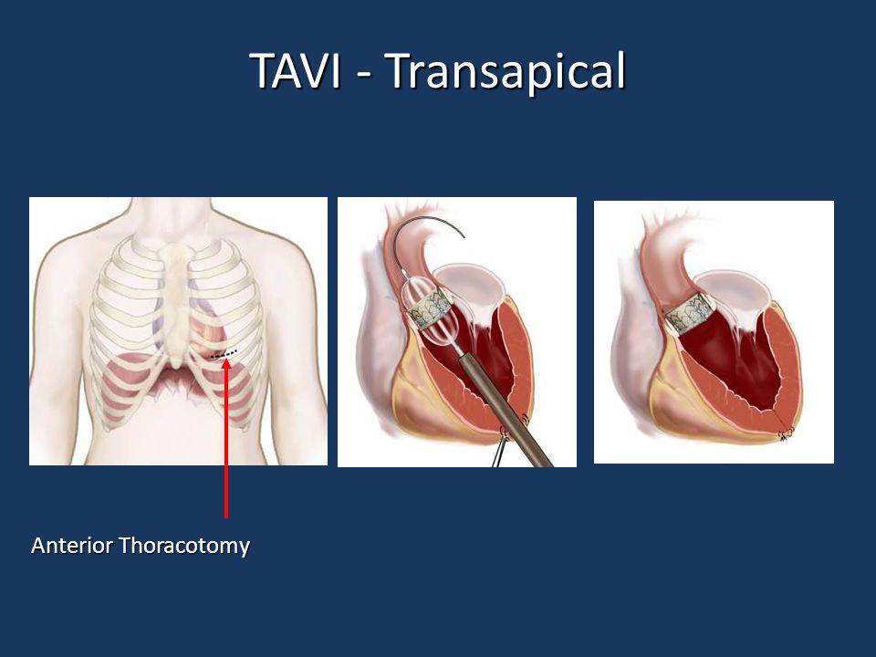 TAVI - Transapical Anterior Thoracotomy