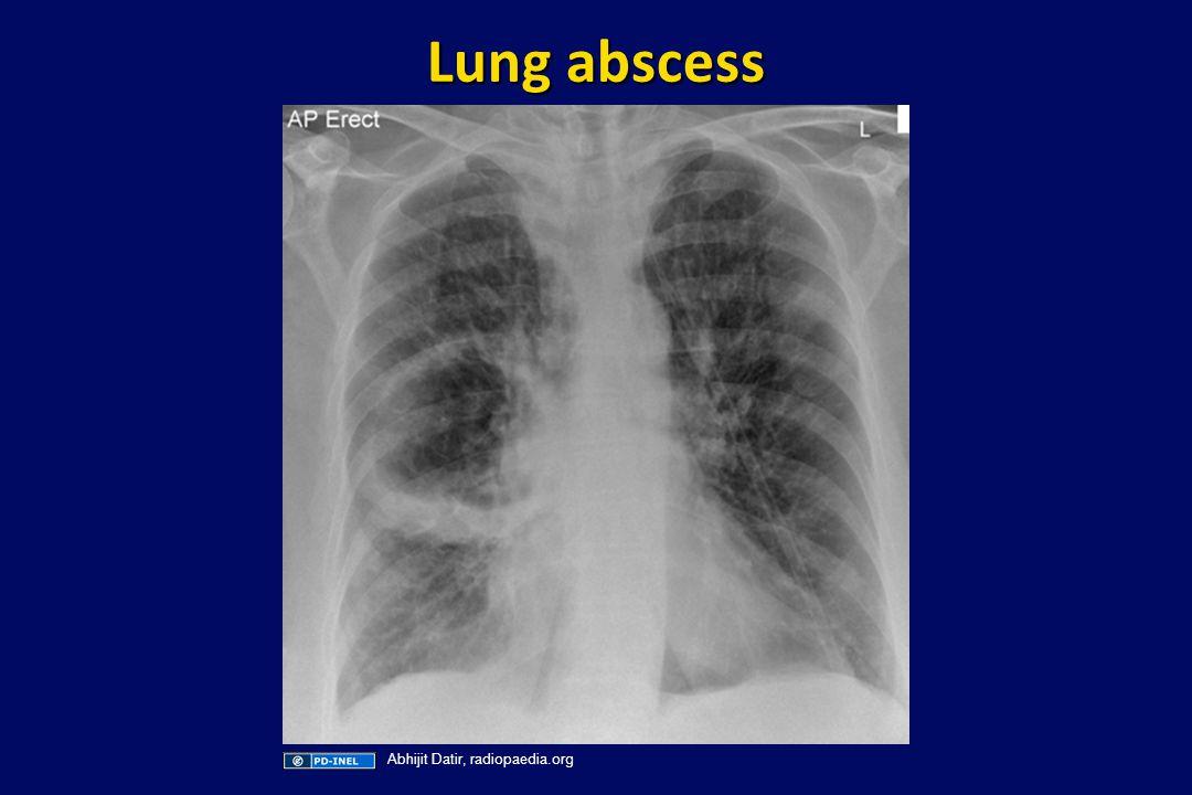 Lung abscess Abhijit Datir, radiopaedia.org