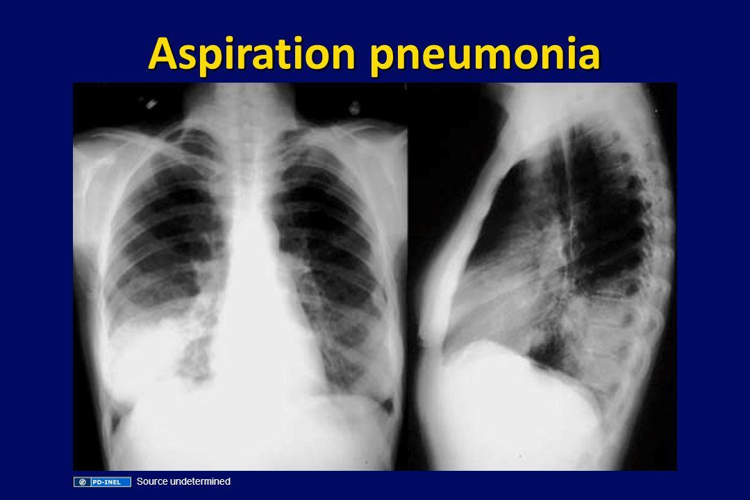 Aspiration pneumonia Source undetermined