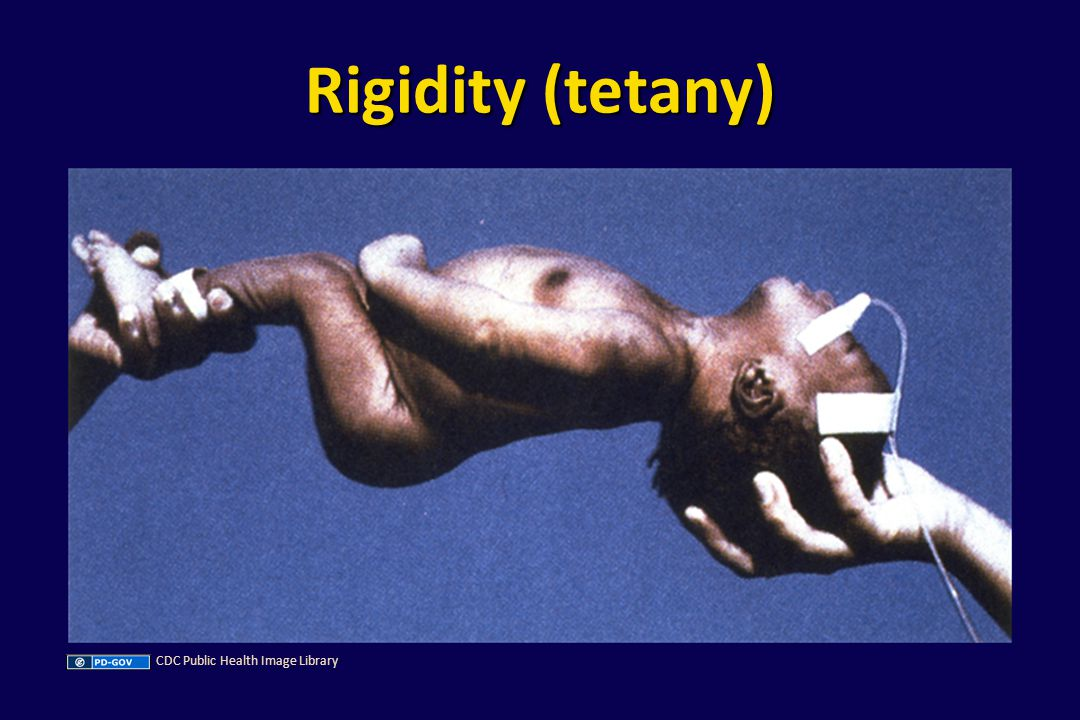 Rigidity (tetany) CDC Public Health Image Library
