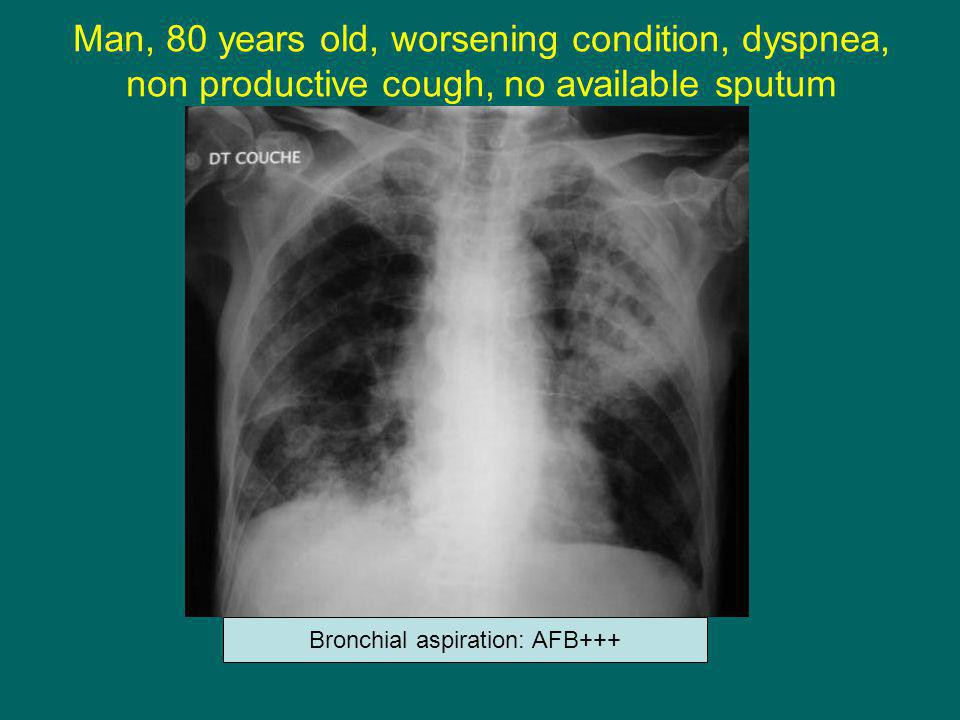 Bronchial aspiration: AFB+++