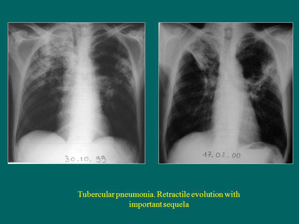 Tubercular pneumonia. Retractile evolution with important sequela