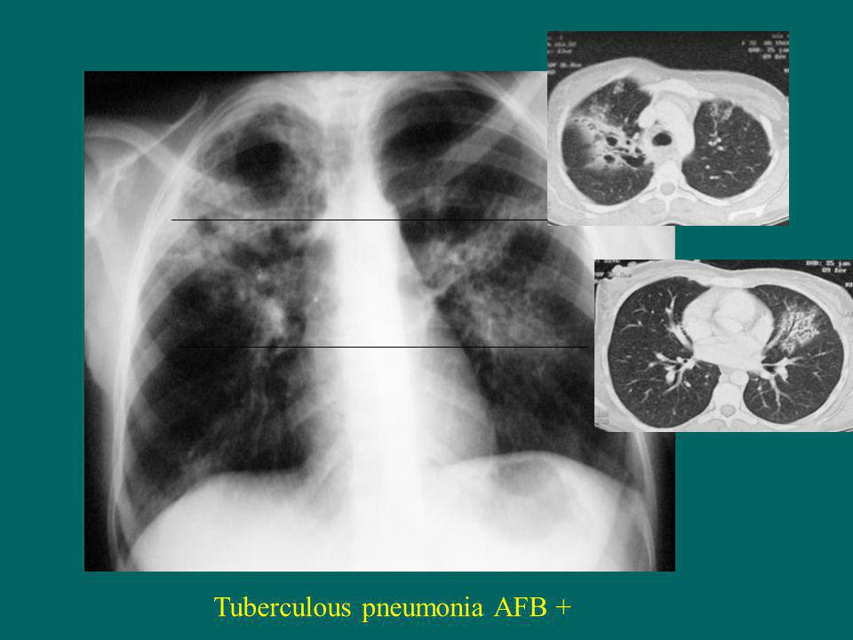 Tuberculous pneumonia AFB +