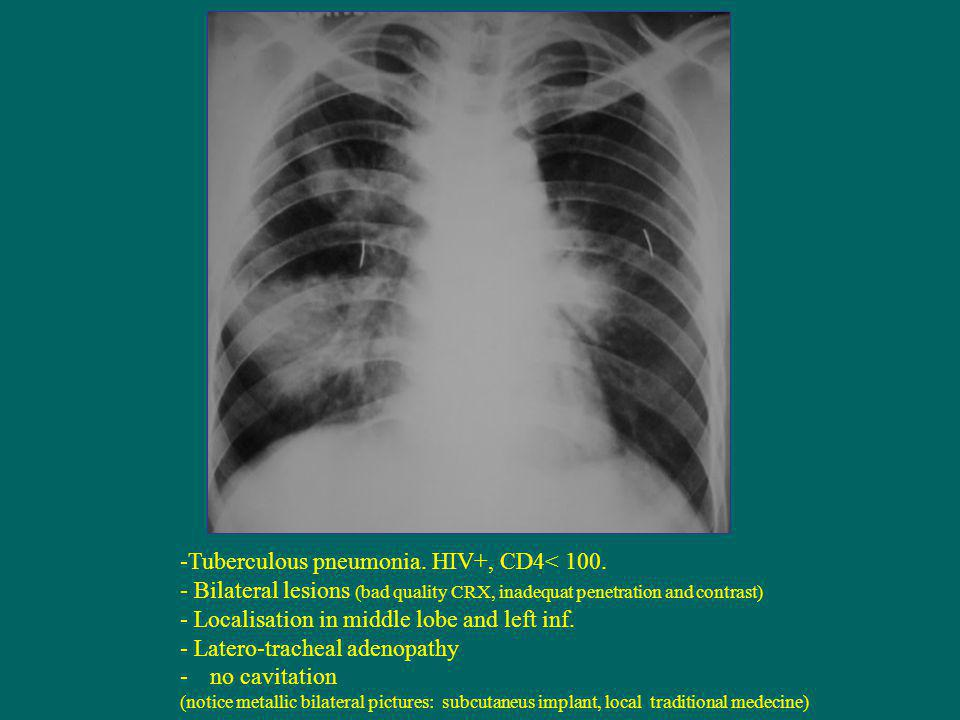 -Tuberculous pneumonia. HIV+, CD4< 100