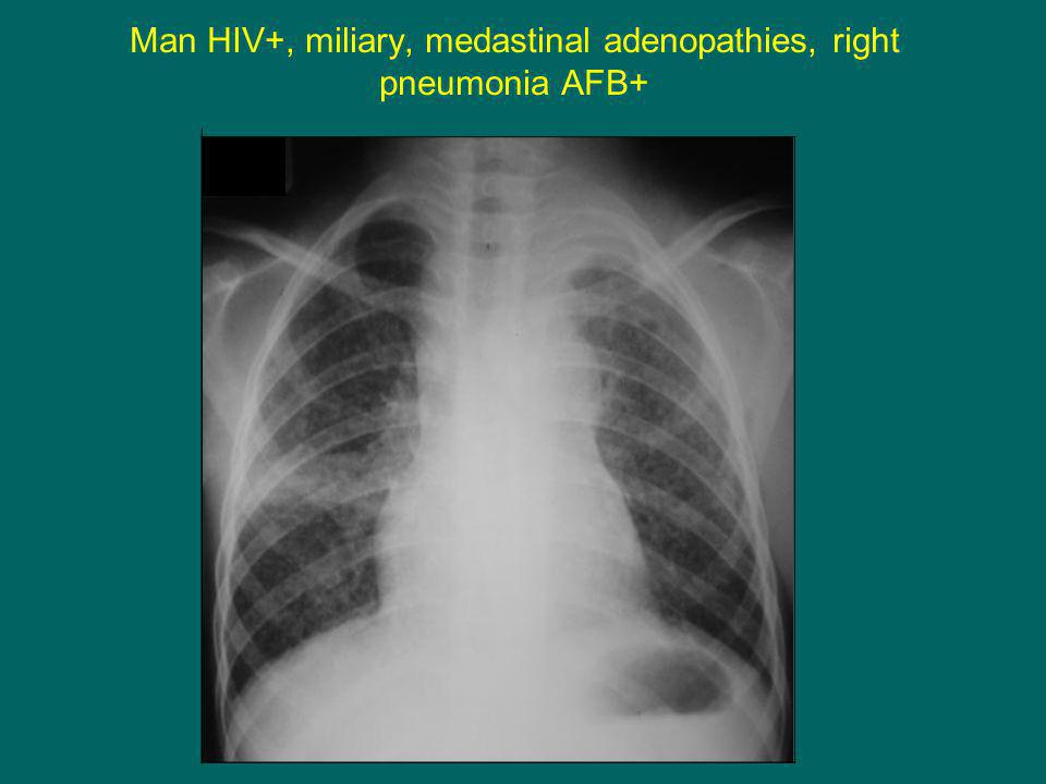 Man HIV+, miliary, medastinal adenopathies, right pneumonia AFB+