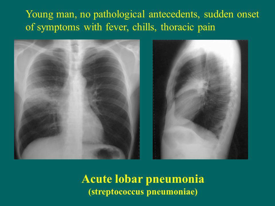 (streptococcus pneumoniae)