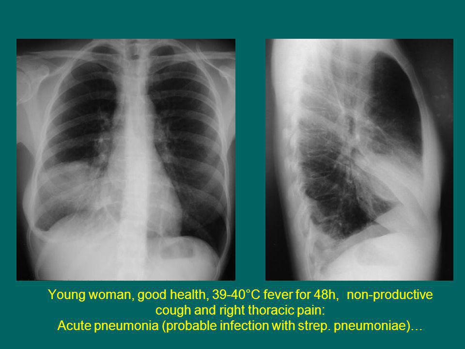 Young woman, good health, 39-40°C fever for 48h, non-productive cough and right thoracic pain: Acute pneumonia (probable infection with strep.