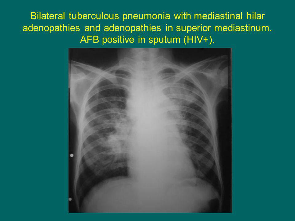 Bilateral tuberculous pneumonia with mediastinal hilar adenopathies and adenopathies in superior mediastinum.