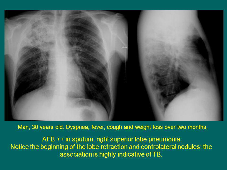 Man, 30 years old. Dyspnea, fever, cough and weight loss over two months.