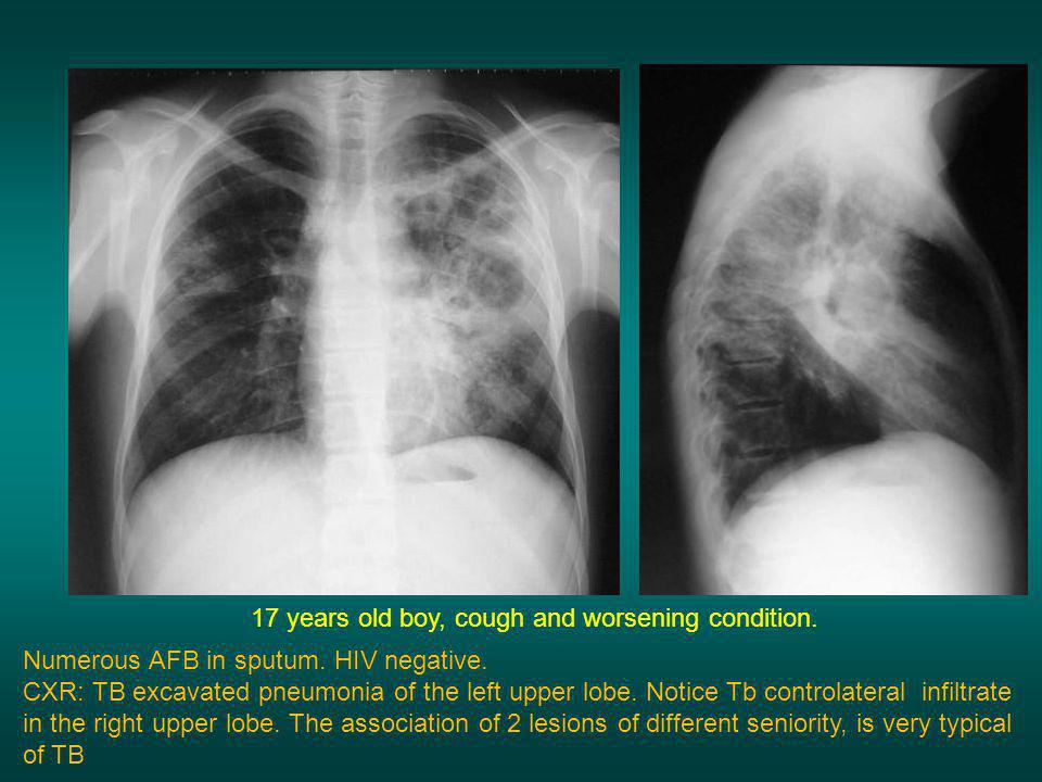 17 years old boy, cough and worsening condition.