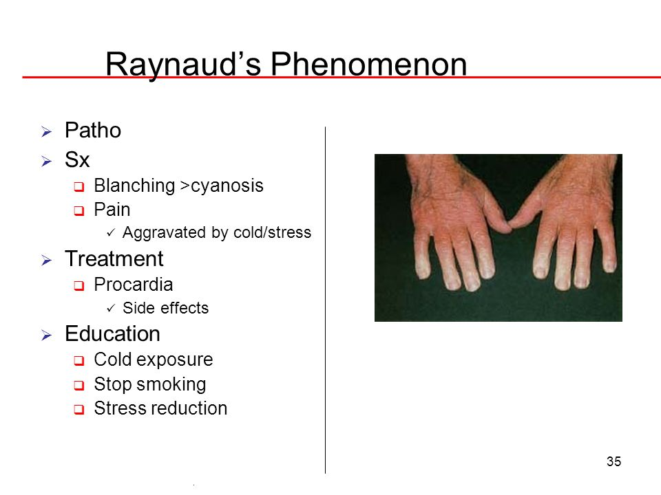 Raynaud's Phenomenon Patho Sx Treatment Education