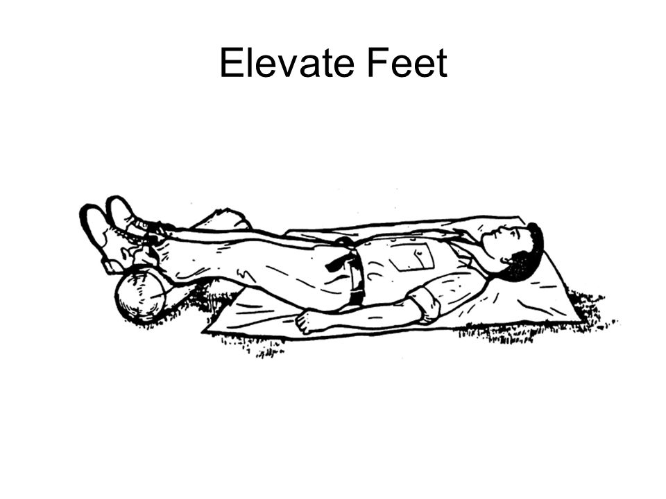 Elevate Feet