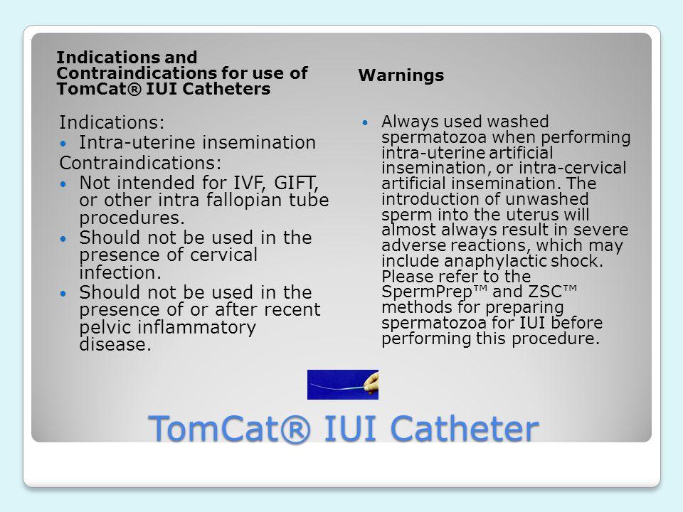 TomCat® IUI Catheter Indications: Intra-uterine insemination