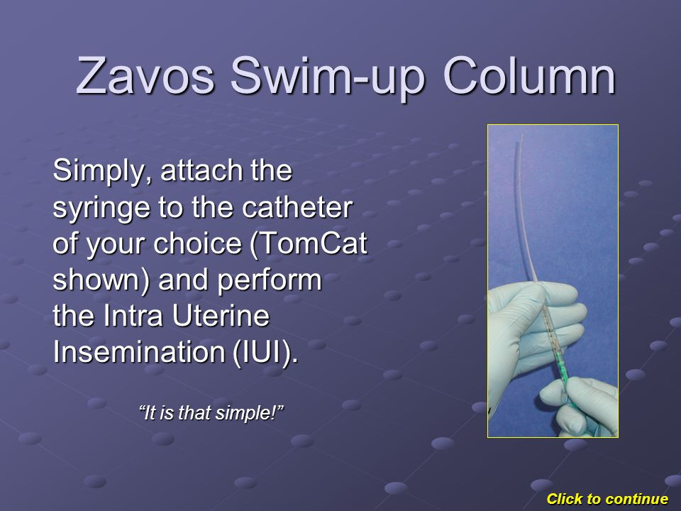 Zavos Swim-up Column Simply, attach the syringe to the catheter of your choice (TomCat shown) and perform the Intra Uterine Insemination (IUI).