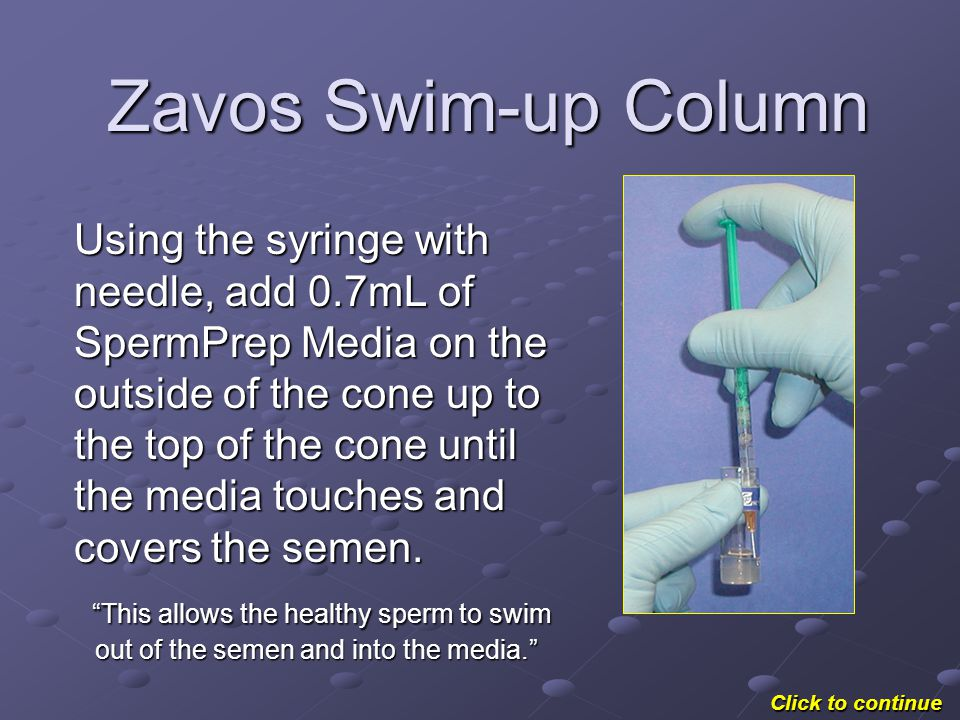 Zavos Swim-up Column