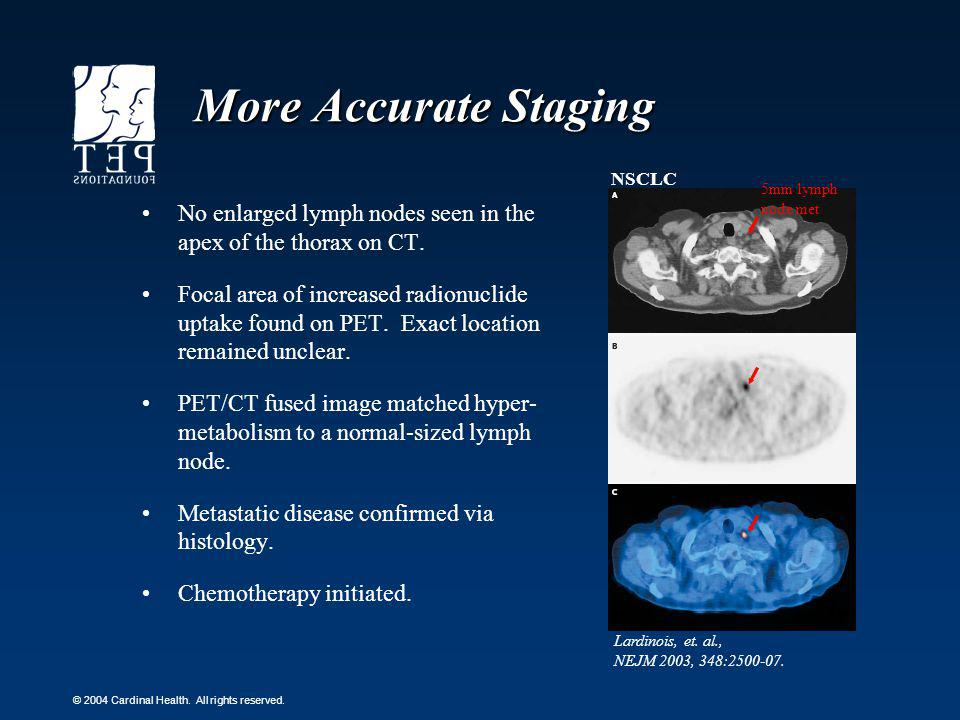 More Accurate Staging NSCLC. 5mm lymph node met. No enlarged lymph nodes seen in the apex of the thorax on CT.