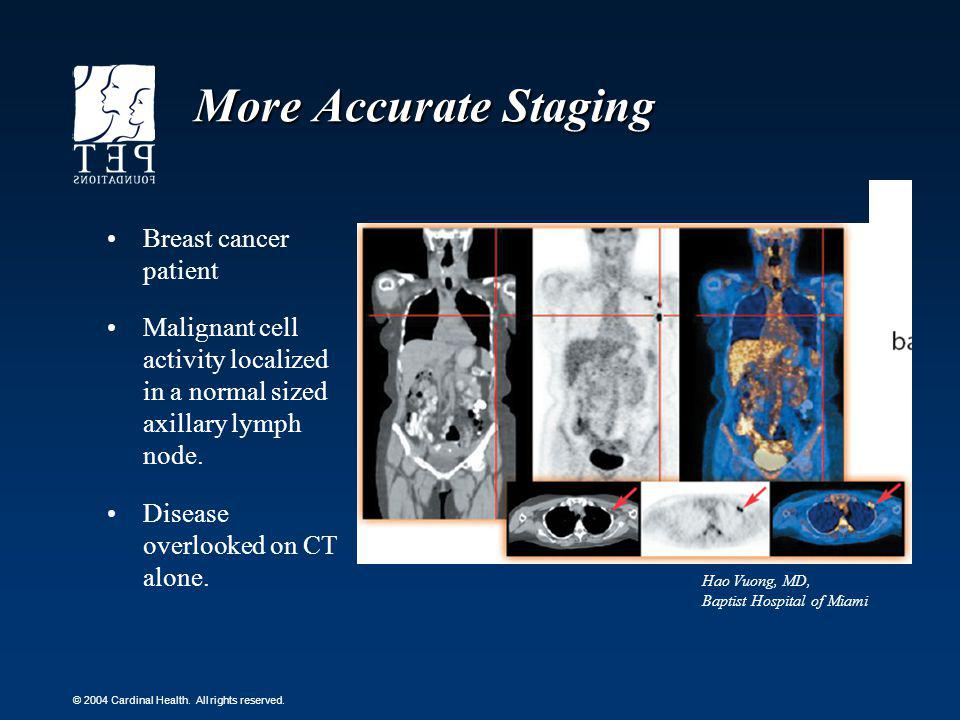More Accurate Staging Breast cancer patient