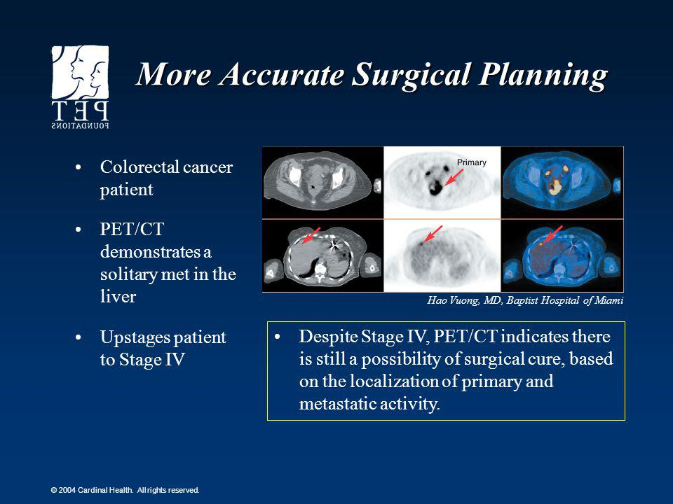 More Accurate Surgical Planning