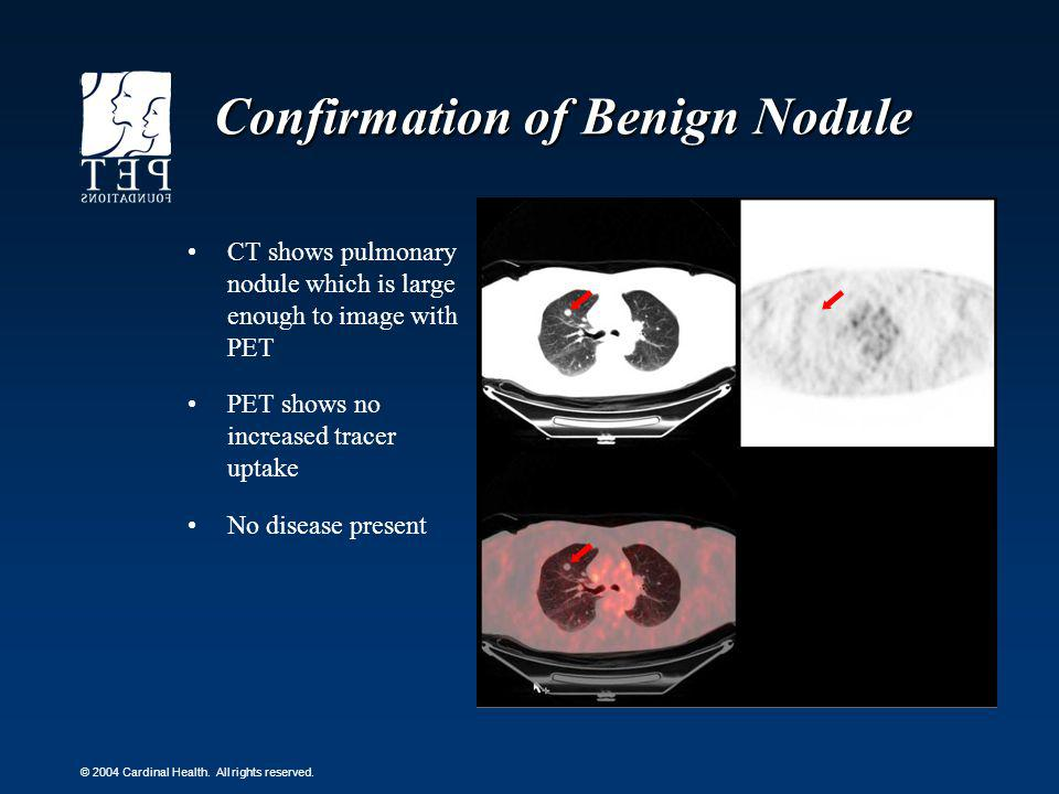 Confirmation of Benign Nodule