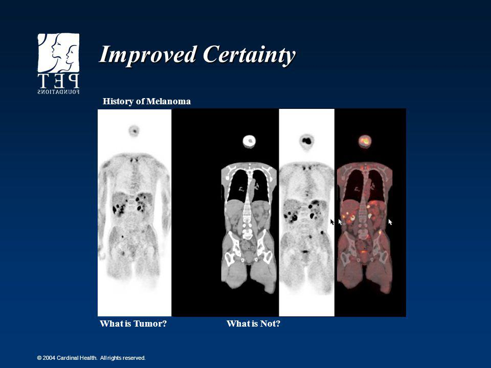 Improved Certainty History of Melanoma What is Tumor What is Not