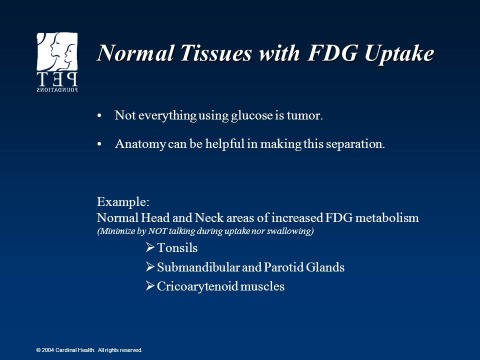 Normal Tissues with FDG Uptake