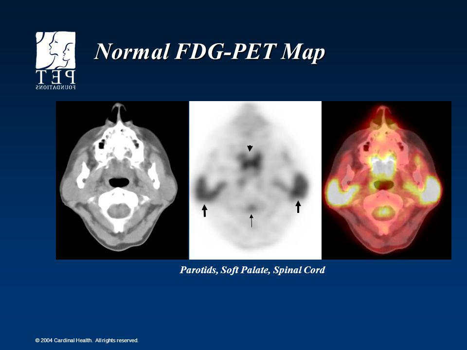 Normal FDG-PET Map Parotids, Soft Palate, Spinal Cord
