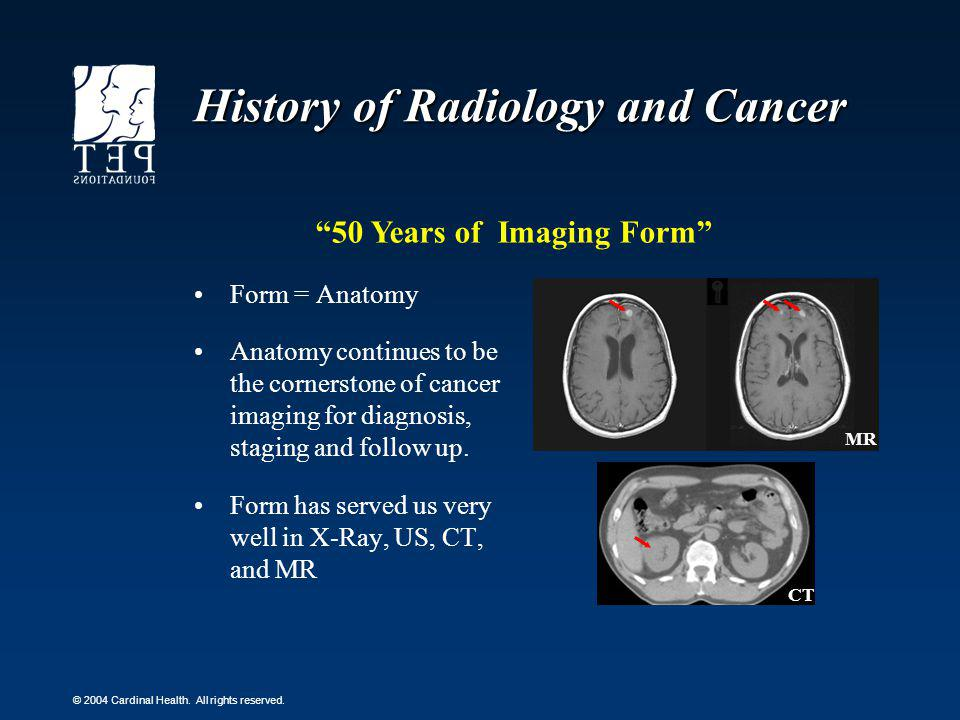 History of Radiology and Cancer