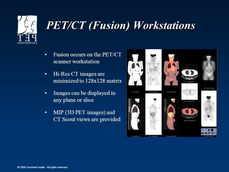 PET/CT (Fusion) Workstations