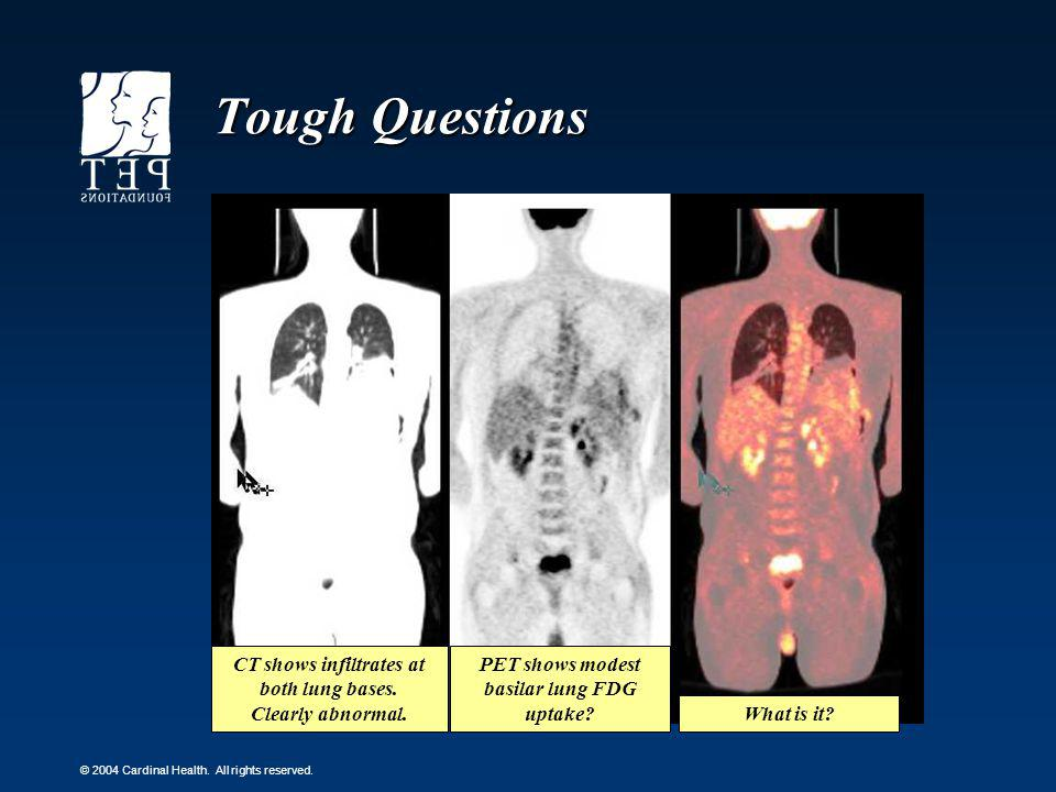 Tough Questions CT shows infiltrates at both lung bases.