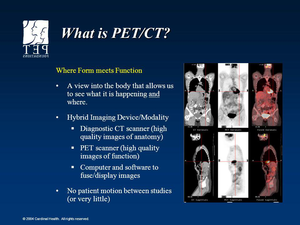 What is PET/CT Where Form meets Function