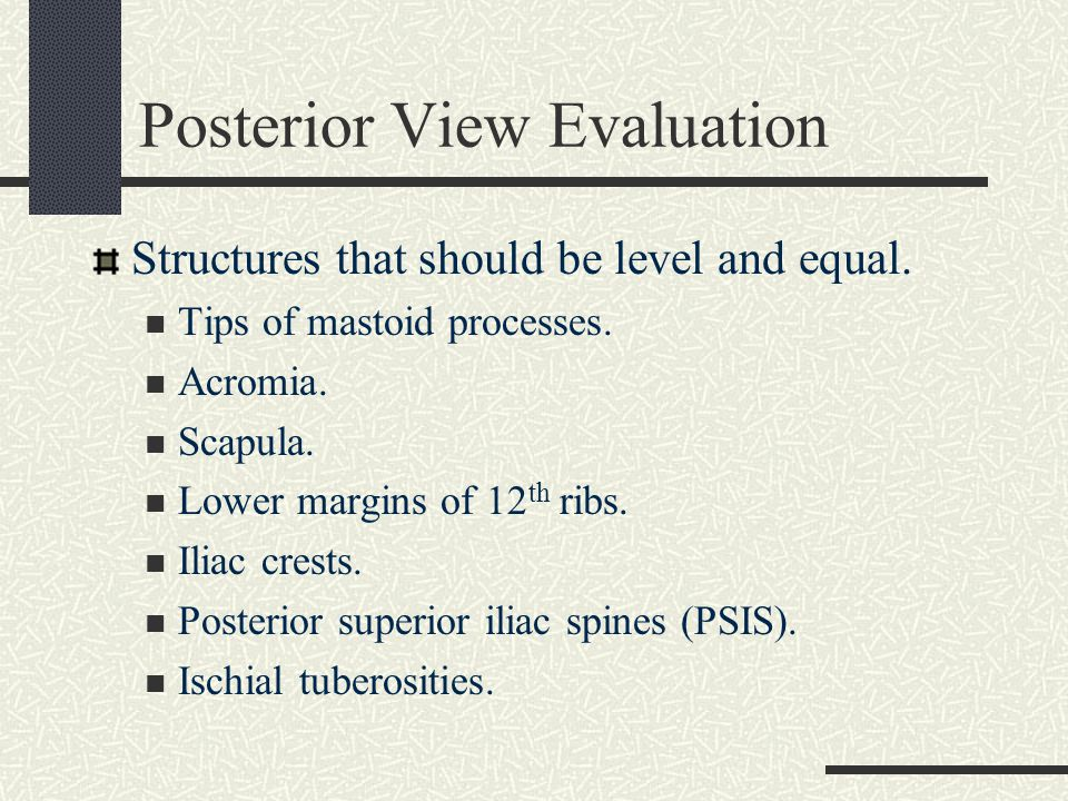 Posterior View Evaluation