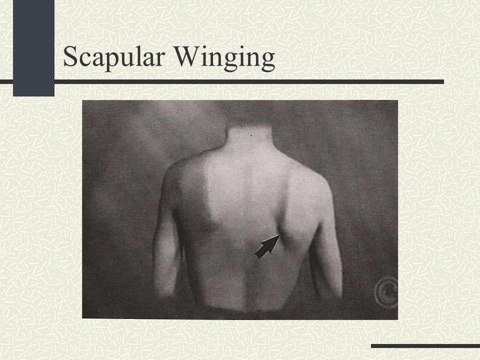 Scapular Winging