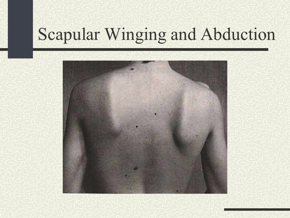 Scapular Winging and Abduction
