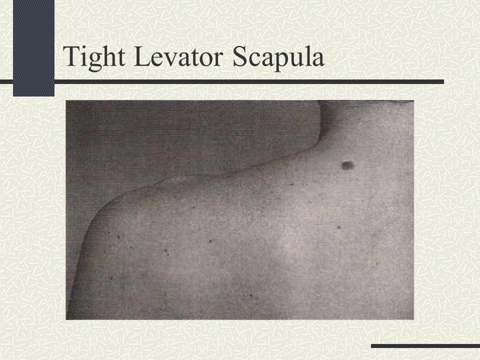 Tight Levator Scapula