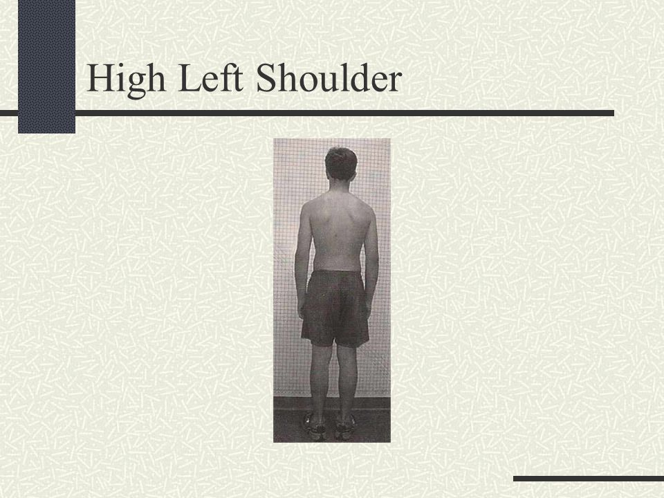 High Left Shoulder